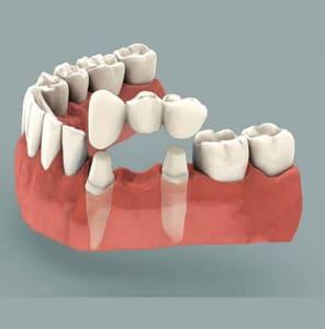 Crowns Bridges and Dentures